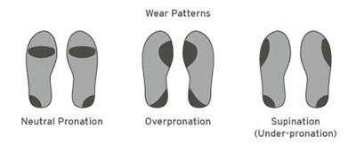 Pronation-Vs-Overpronation-Vs-Supination-wear-patterns